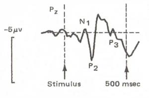 Courbe de mesure de signal ERP.